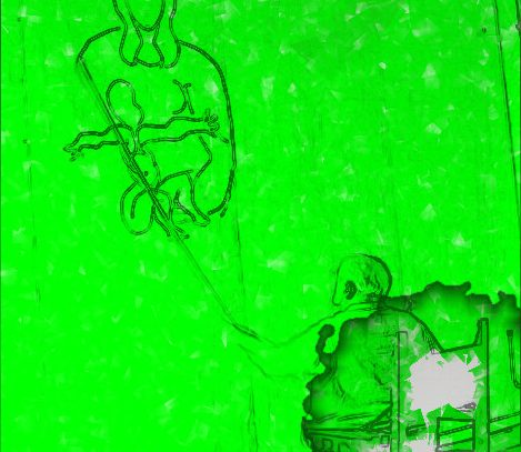 "Markenrecht – Kunstmagazin ""art"" gegen ""art FORUM BERLIN"" (BPatG vom 20.2.2017 – 27 W (pat) 72/14)"